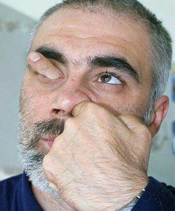 Przez nos do oka