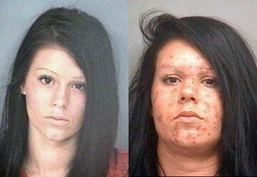 Przerażająca zmiana! Co stało się z jej twarzą?