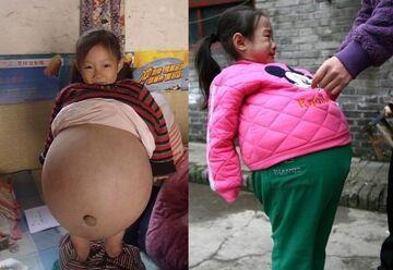 4-latka zaszła w ciążę! Urodziła trojaczki!!!