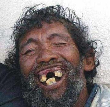 Złoty uśmiech