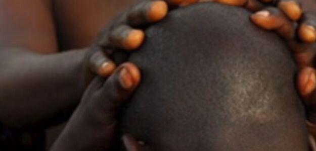 W Mozambiku czarownicy polują na łysych mężczyzn