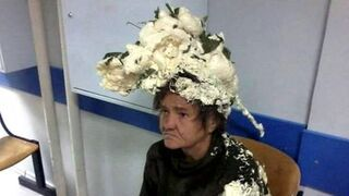 Chciała ułożyć włosy. Wylądowała w szpitalu