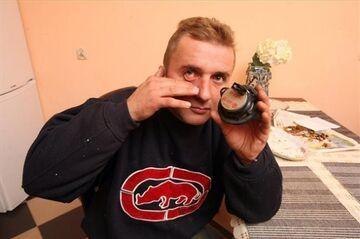 Polscy lekarze nie pomogli. Sam zoperował sobie oko!