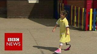 Reakcja dzieci na protezę koleżanki - BBC News